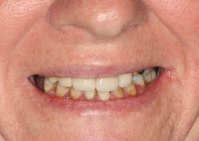 815_Teeth_in_a_day_before_and_after_006