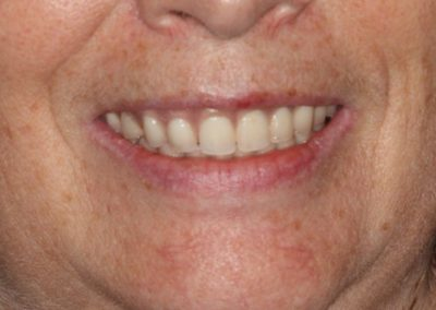 815_Teeth_in_a_day_before_and_after_015-768x472