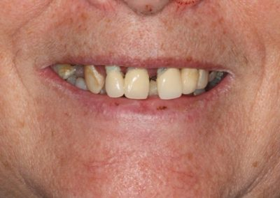 815_Teeth_in_a_day_before_and_after_016-768x441